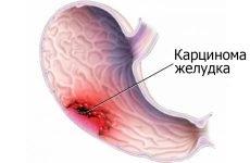 Рак шлунка: симптоми, прогноз, лікування