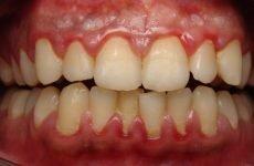 Антибіотик при запаленні зубів і ясен: огляд ефективних засобів