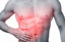 Кальцинати в печінці (правої, лівої частки): симптоми, причини, лікування