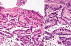 Дисплазія шлунка: ступеня, лікування, симптоми