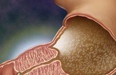 Пілороспазм: лікування у дорослих і дітей, діагностика, симптоми