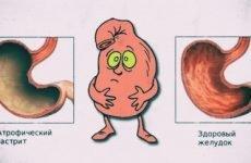 Наскільки небезпечний атрофічний гастрит і що потрібно робити при перших симптомах?