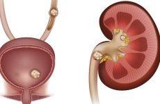 Способи видалення каменів у нирках: ефективність, протипоказання
