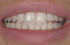 Вініри без обточування зубів: методика встановлення, переваги і недоліки