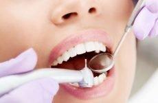 Чи можна лікувати зуби під час місячних: протипоказання та рекомендації