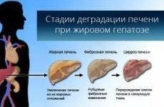 Дієта при ожирінні печінки: що можна їсти, особливості харчування