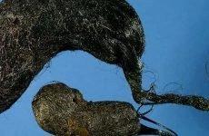 Безоар шлунка: лікування, симптоми, причини та види