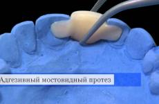 Адгезивний мостоподібний протез: методика виготовлення і установки