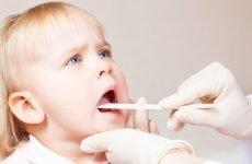 Тонзиліт у дитини: традиційні та народні методи лікування