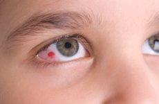 У дитини почервонів очей. Причини і лікування, що робити