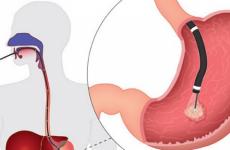 Фіброгастроскопія шлунка: підготовка, як роблять, протипоказання