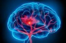 Як розширити судини головного мозку