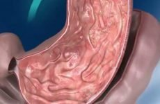 Моторна функція шлунка: види, причини порушень, лікування