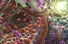 Очищення шлунку і кишечника: як допомогти своєму організму