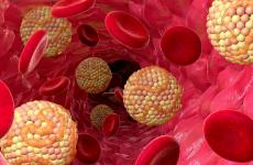 Горіхи для судин, їх вплив на рівень холестерину