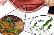 Шляхи зараження інфекційним гастритом і правила його лікування
