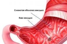 Слизова оболонка шлунка: з яких елементів складається
