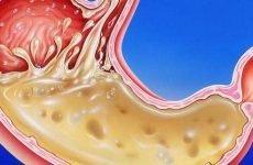 Сік в шлунку: склад, властивості, основні функції