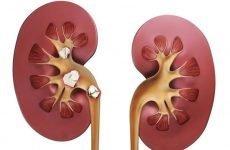 Уратні камені в нирках: що це, симптоми, лікування та профілактика