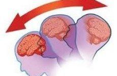 Ознаки струсу мозку у дорослих і дітей, наслідки та прогноз фахівця