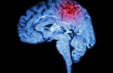 Як визначити перші ознаки інсульту та надати долікарську допомогу?