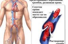 Що таке антикоагулянти в медицині, їх класифікація та назву ліків