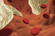 Що таке гомоцестин і коли потрібно здавати аналіз?