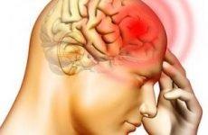 Причини головного болю і як її зняти