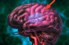 Чому судини мозку обмежені та які наслідки це може викликати?