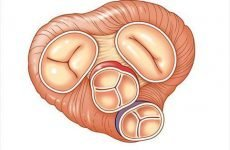 Будова аортального клапана серця і чому виникають вади АК?