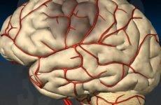 Транзиторна ішемічна атака головного мозку
