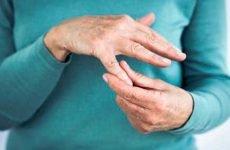 Альтернативні методи лікування артриту