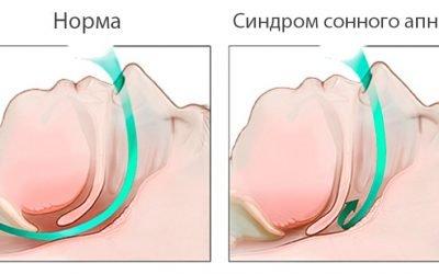 Апное сну – лікування синдрому різними методами