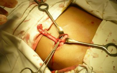 Апендицит: симптоми у дорослих жінок і чоловіків, причини, з якої сторони знаходиться і як лікувати