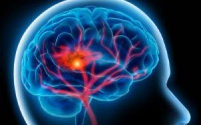 Як поліпшити кровообіг судин мозку за допомогою препаратів