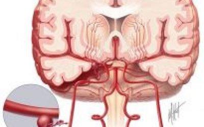Субарахноїдальний крововилив — лікування, симптоми та прогноз на життя