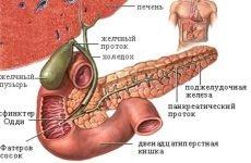 Біліарний панкреатит: форми захворювання, симптоми і непрямі ознаки патології, лікування, дієта
