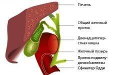 Біліарний рефлюкс гастрит: що це таке, причини, симптоми захворювання, дієта, лікування