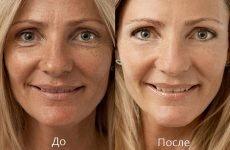 Біоармування гіалуронової кислотою: що це таке, відгуки, фото до і після, ціна