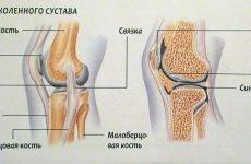 Біль у коліні ззаду при ходьбі, ниючі після бігу: причини, що робити, мазі, уколи, знеболюючі