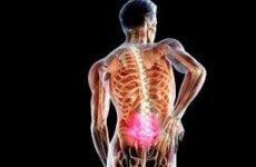 Біль у хребті: посередині спини, між лопатками, в області попереку, в грудному відділі, знизу