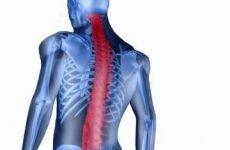 Біль у спині при сколіозі грудного або поперекового відділу: що робити