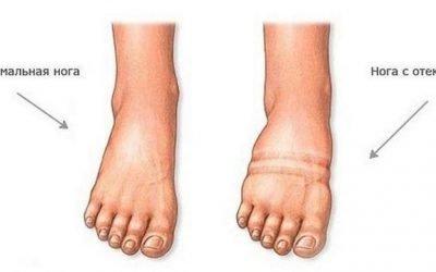 Як зняти набряклість ніг при серцевій недостатності
