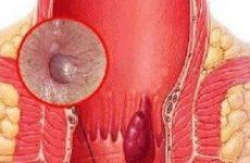 Чим небезпечний гемморой, його наслідки, профілактика хвороби у жінок