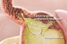 Що робити при сильній печії, як позбутися: причини, лікування