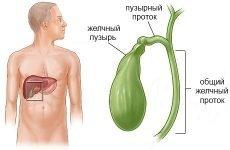 Що таке дискінезія жовчного міхура (гипомоторная, гипермоторная), симптоми і лікування захворювання