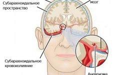Що таке геморагічний інсульт головного мозку, симптоми, лікування, наслідки, прогноз одужання