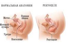 Що таке ректоцеле: причини у жінок і чоловіків, симптоми, лікування, операція
