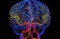 Судини головного мозку — симптоми і лікування, які бувають захворювання мозку
