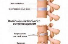 Диференціальна діагностика остеохондрозу: шийного, грудного, поперекового відділу хребта